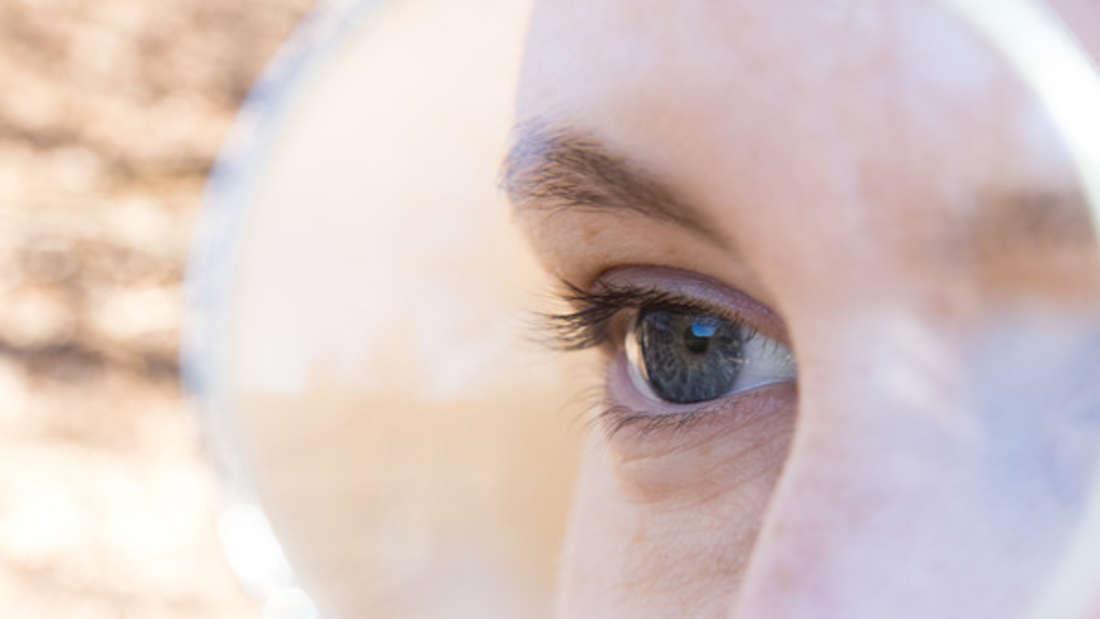 Hautgrieß tut nicht weh oder ist gefährlich, doch viele leiden dennoch unter den unschönen weißen Pickelchen im Gesicht.