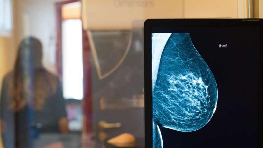 Röntgenbild eines Mammographie-Screening-Programms: Bei Frauen war Brustkrebs im Jahr 2016 die häufigste Krebserkrankung mit Todesfolge. Foto: Klaus-Dietmar Gabbert