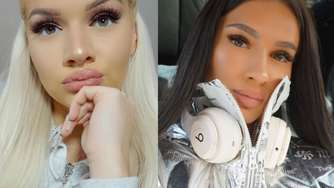 "Shirin David: Rapperin wird hart attackiert - betreibt sie ""Blackfishing""?"